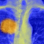 Tumour in the left, upper lung. Source: BBC News